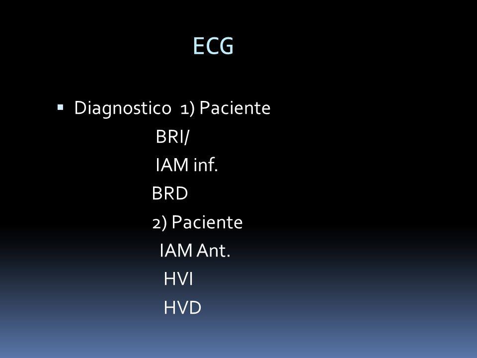 ECG Diagnostico 1) Paciente BRI/ IAM inf. BRD 2) Paciente IAM Ant. HVI