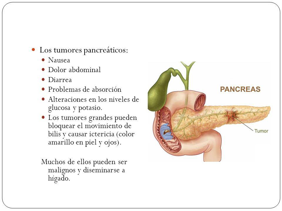 Los tumores pancreáticos: