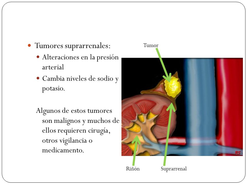 Tumores suprarrenales: