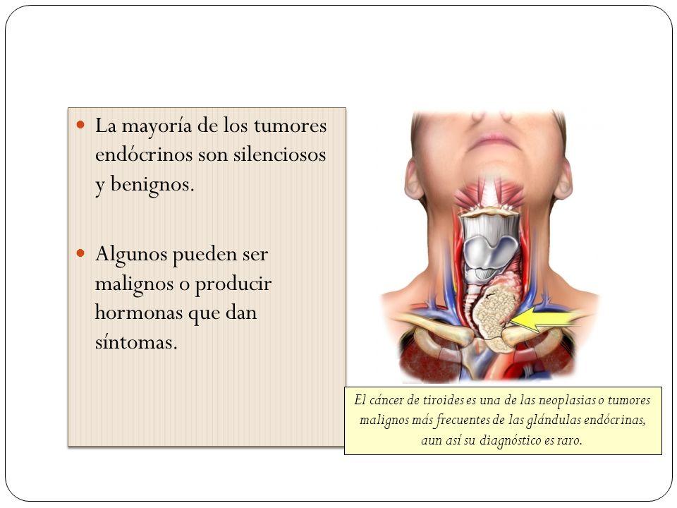 La mayoría de los tumores endócrinos son silenciosos y benignos.