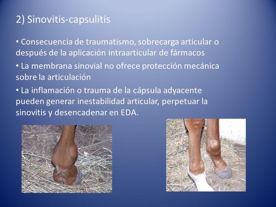 2) Sinovitis-capsulitis