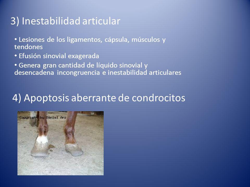 3) Inestabilidad articular
