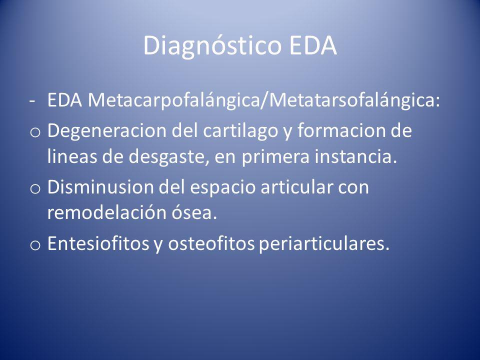 Diagnóstico EDA EDA Metacarpofalángica/Metatarsofalángica: