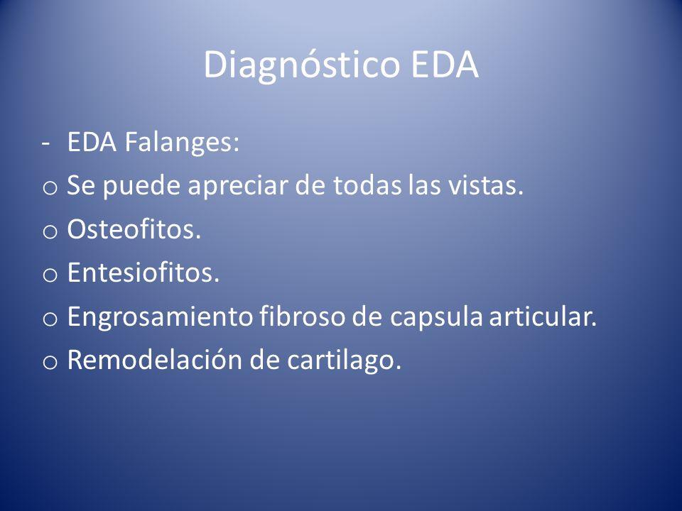 Diagnóstico EDA EDA Falanges: Se puede apreciar de todas las vistas.
