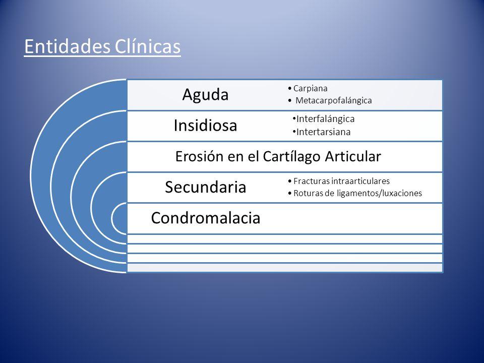 Entidades Clínicas Aguda Insidiosa Secundaria Condromalacia