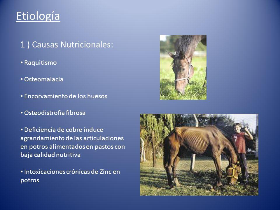 Etiología 1 ) Causas Nutricionales: Raquitismo Osteomalacia