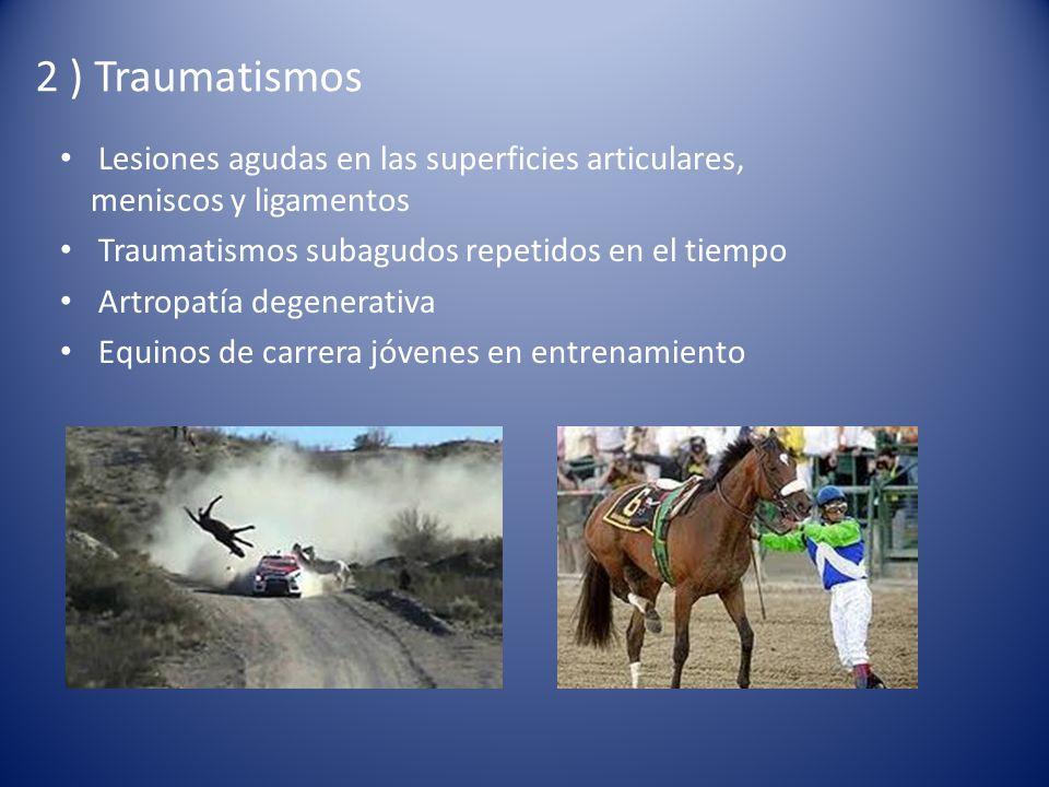 2 ) Traumatismos Lesiones agudas en las superficies articulares, meniscos y ligamentos. Traumatismos subagudos repetidos en el tiempo.