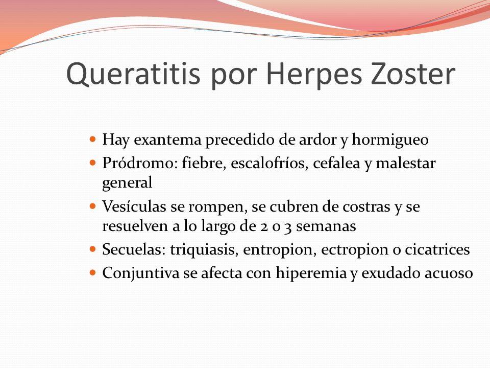 Queratitis por Herpes Zoster