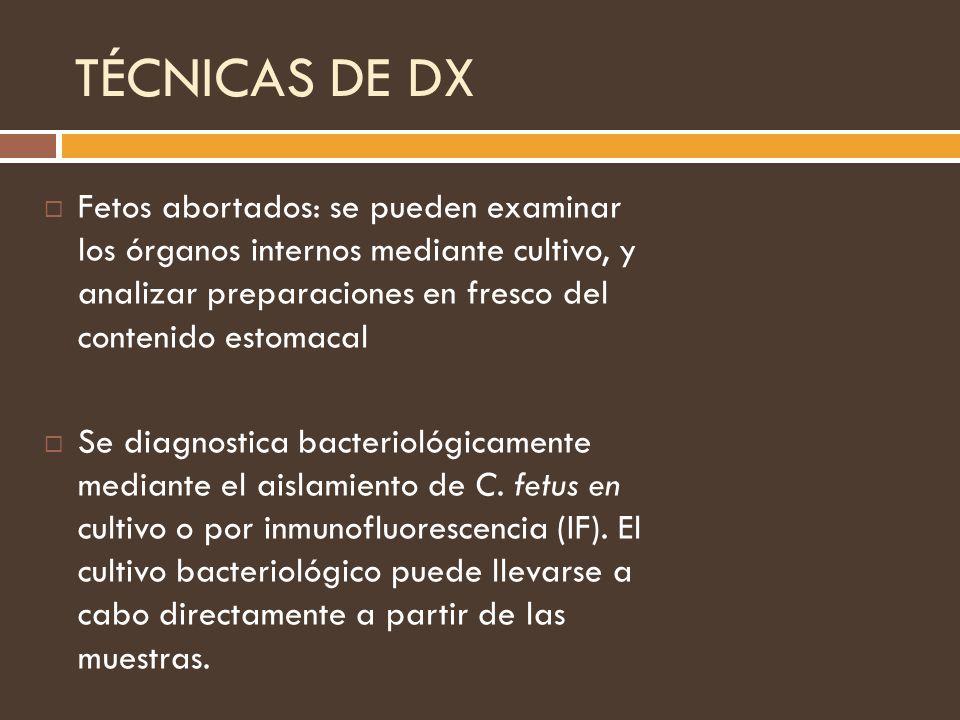 TÉCNICAS DE DX