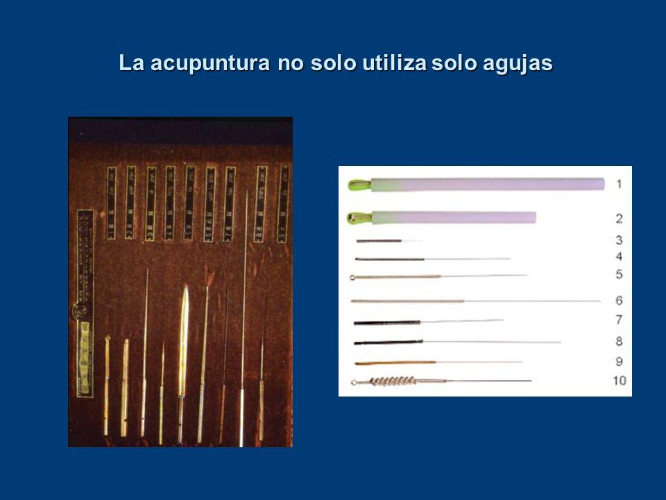 La acupuntura no solo utiliza solo agujas