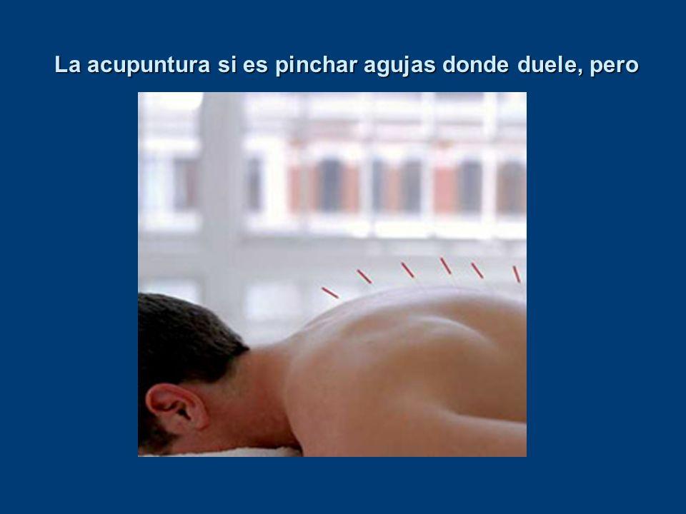 La acupuntura si es pinchar agujas donde duele, pero
