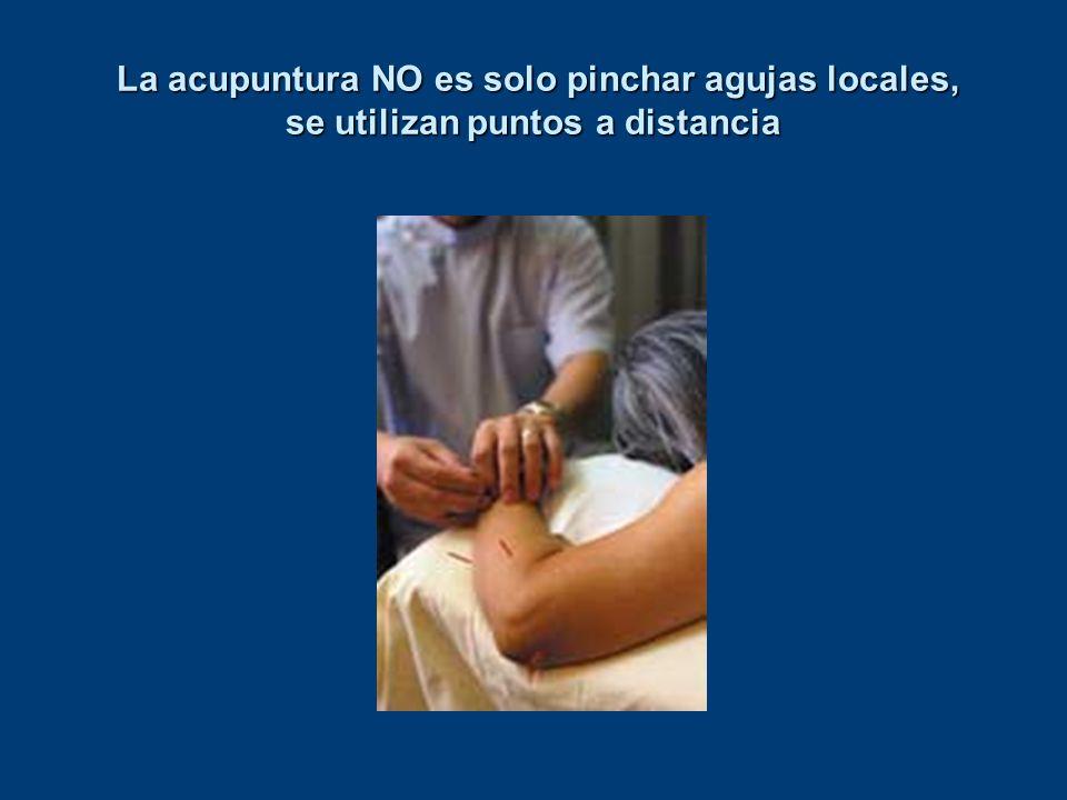 La acupuntura NO es solo pinchar agujas locales, se utilizan puntos a distancia