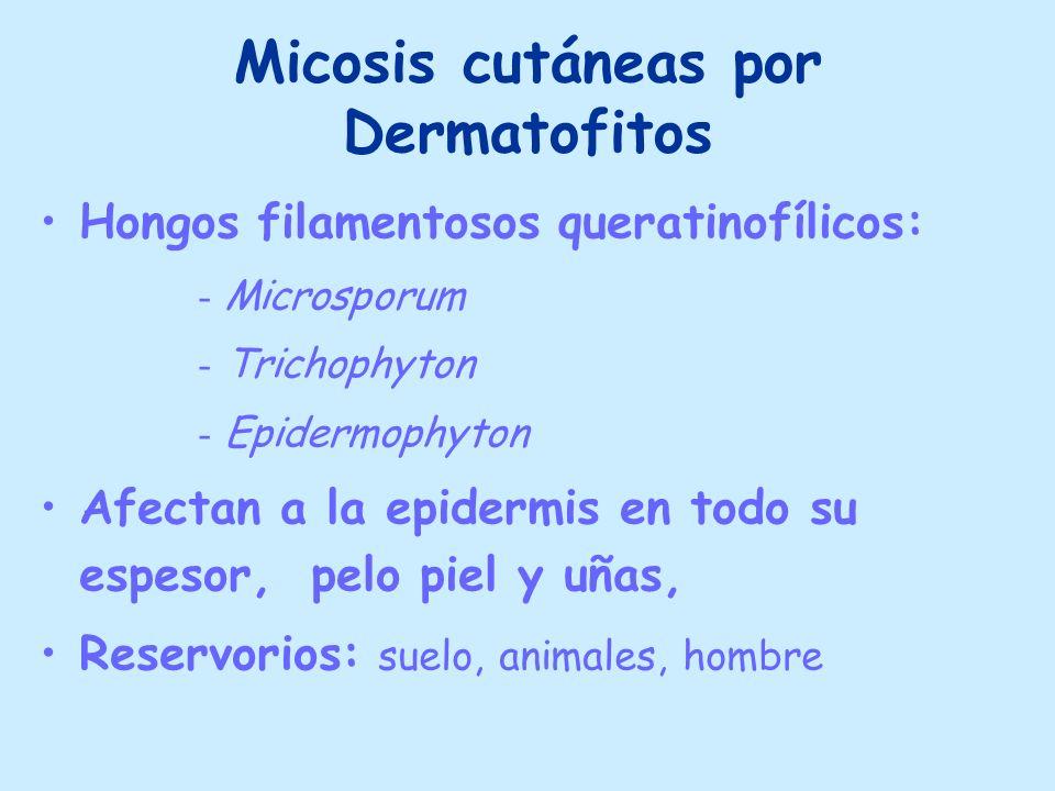 Micosis cutáneas por Dermatofitos