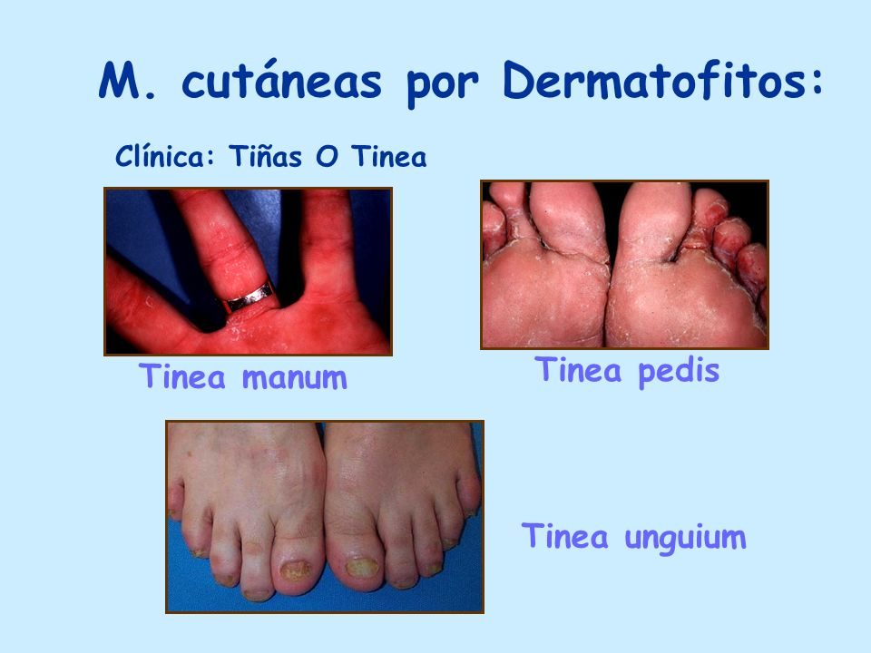M. cutáneas por Dermatofitos: