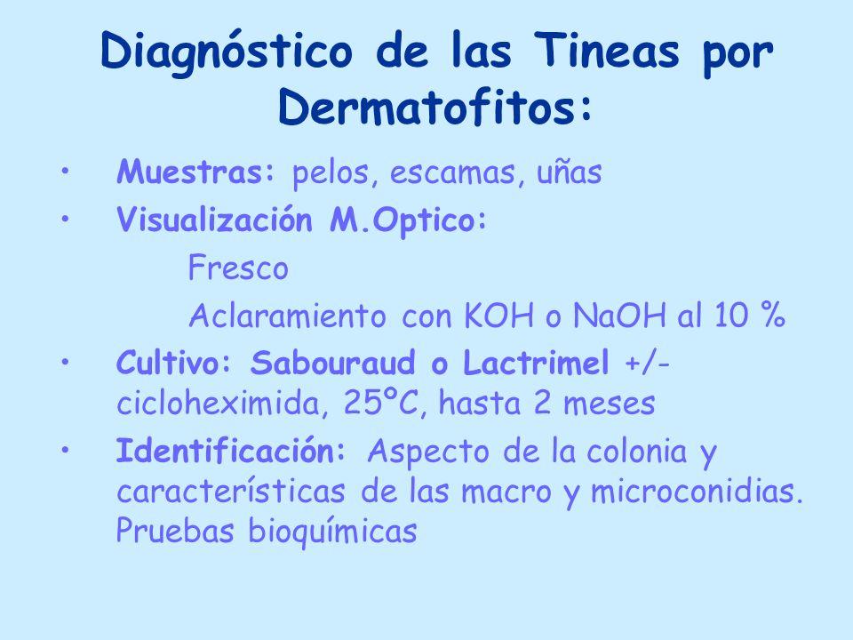 Diagnóstico de las Tineas por Dermatofitos: