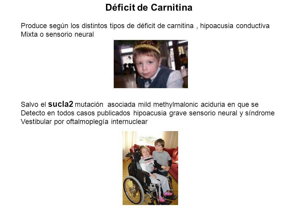 Déficit de Carnitina Produce según los distintos tipos de déficit de carnitina , hipoacusia conductiva.