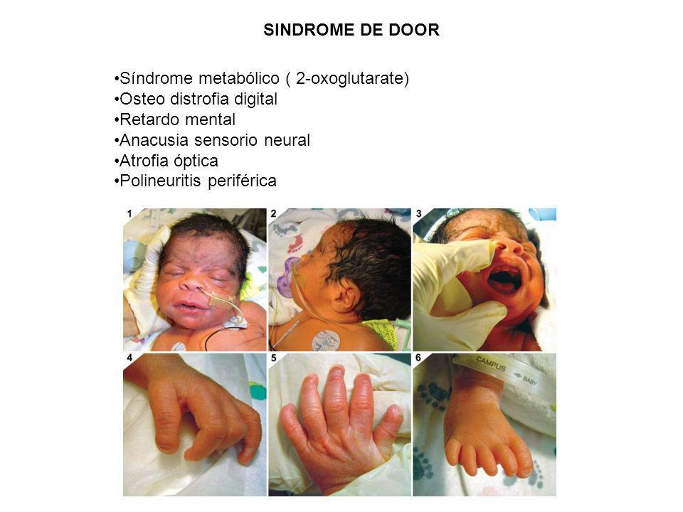 SINDROME DE DOOR Síndrome metabólico ( 2-oxoglutarate) Osteo distrofia digital. Retardo mental. Anacusia sensorio neural.