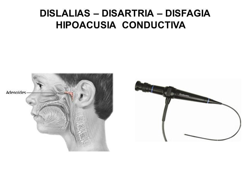 DISLALIAS – DISARTRIA – DISFAGIA