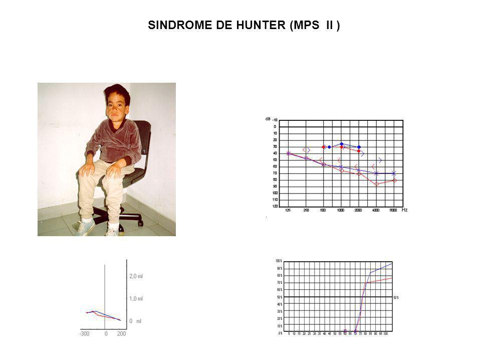 SINDROME DE HUNTER (MPS II )