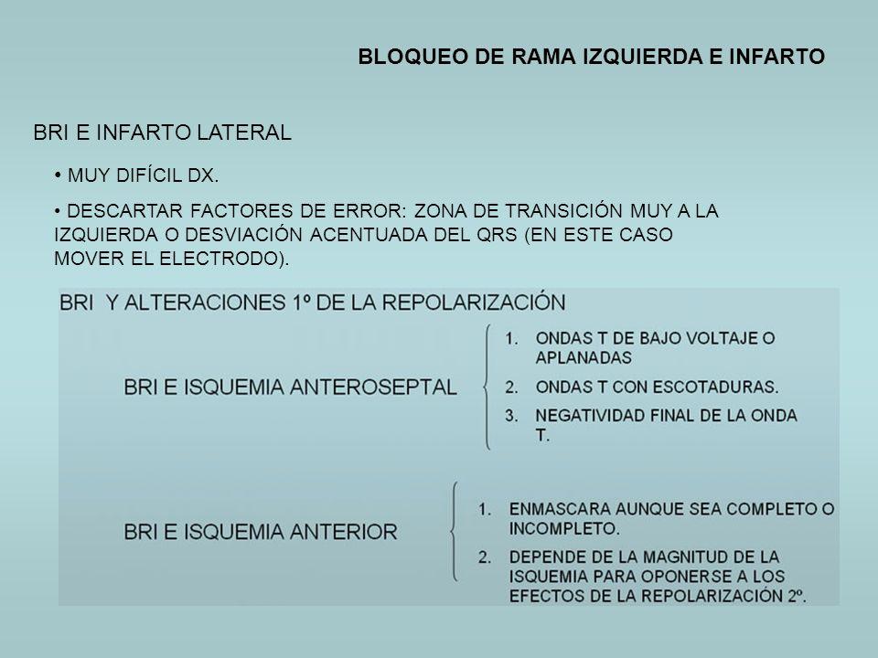 BLOQUEO DE RAMA IZQUIERDA E INFARTO