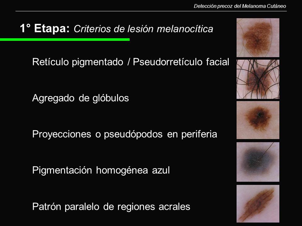 1° Etapa: Criterios de lesión melanocítica