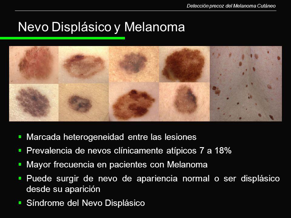 Nevo Displásico y Melanoma