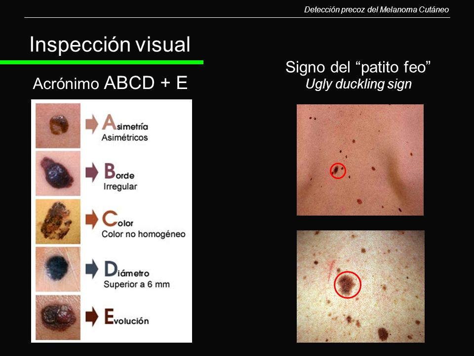 Inspección visual Signo del patito feo Acrónimo ABCD + E