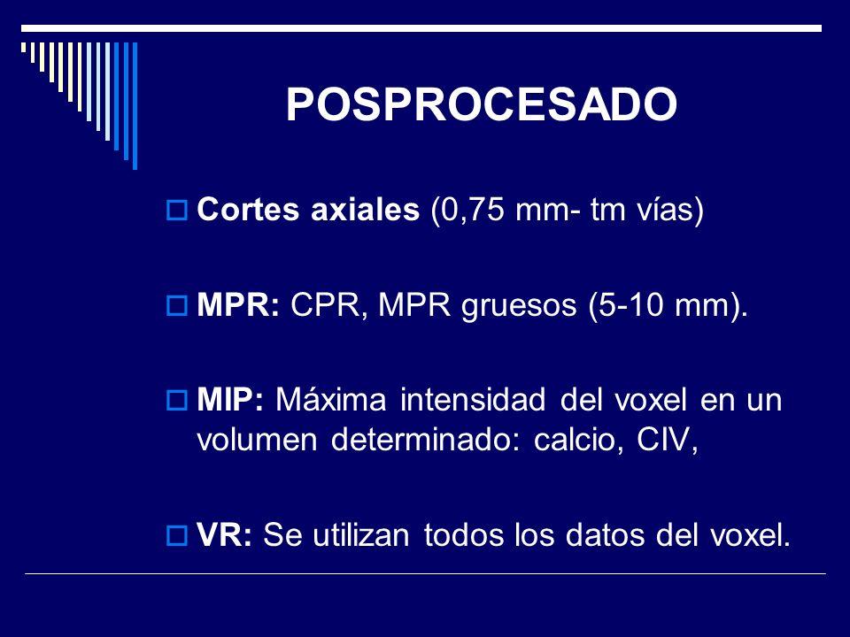 POSPROCESADO Cortes axiales (0,75 mm- tm vías)