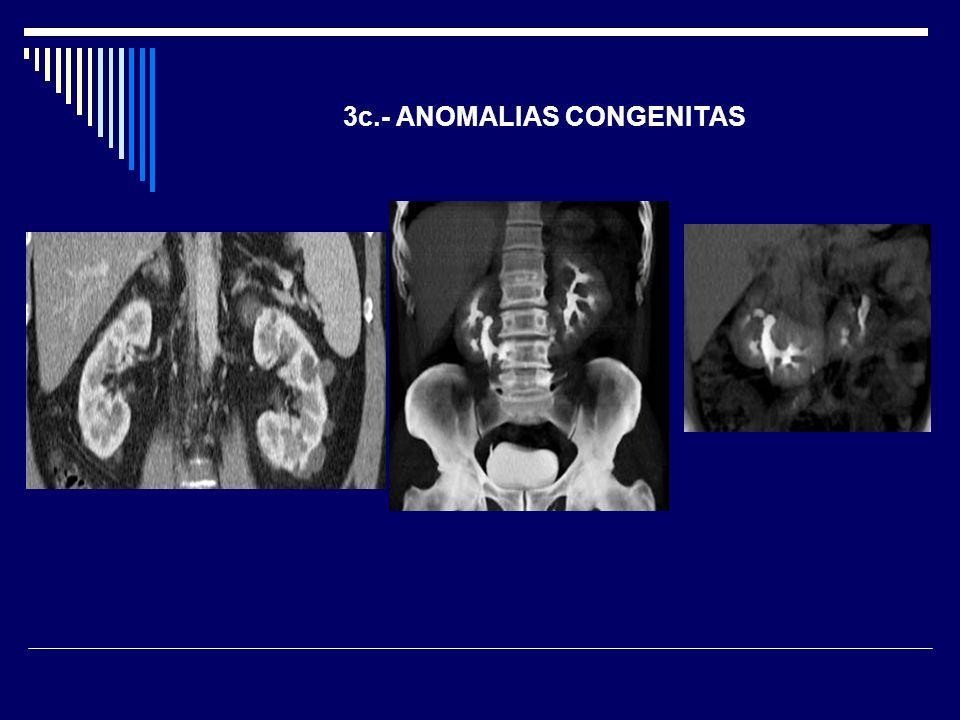 3c.- ANOMALIAS CONGENITAS