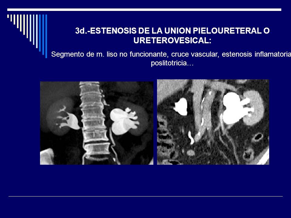 3d.-ESTENOSIS DE LA UNION PIELOURETERAL O URETEROVESICAL: