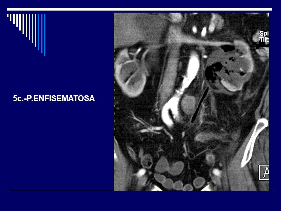 5c.-P.ENFISEMATOSA