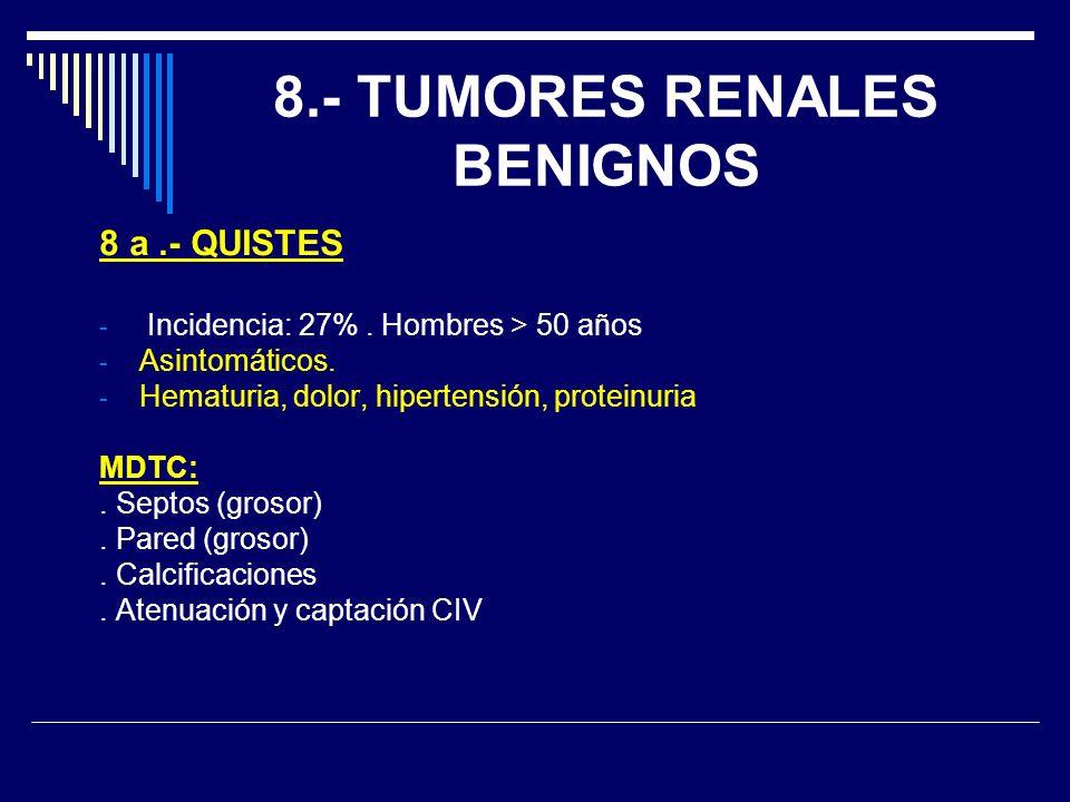 8.- TUMORES RENALES BENIGNOS