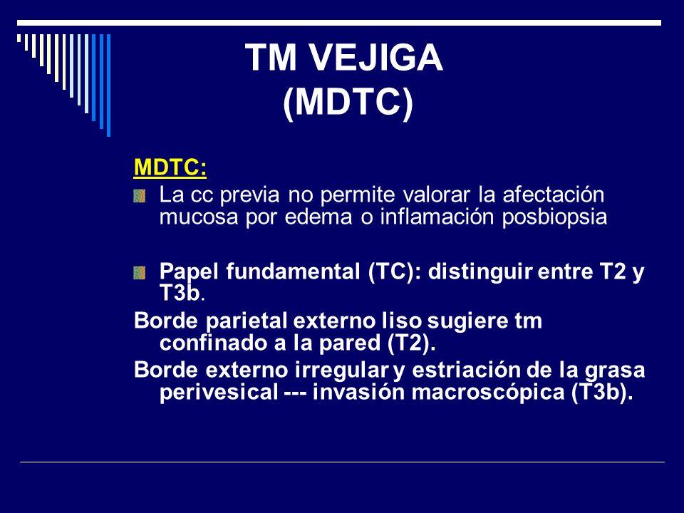 TM VEJIGA (MDTC) MDTC: La cc previa no permite valorar la afectación mucosa por edema o inflamación posbiopsia.