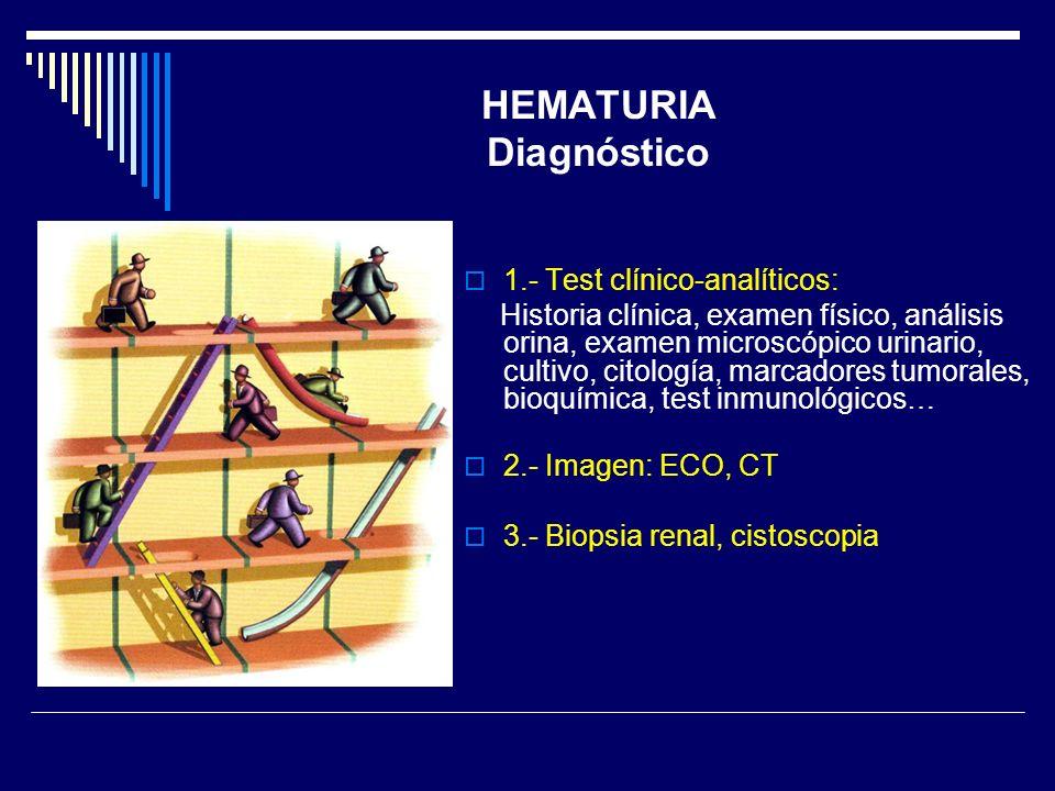 HEMATURIA Diagnóstico