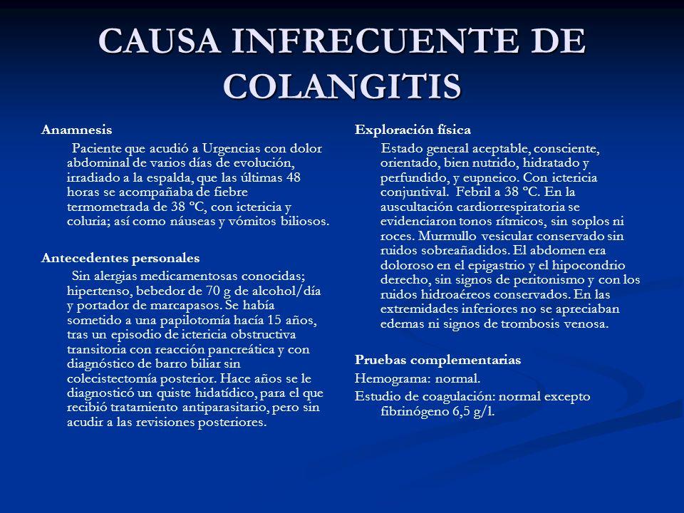 CAUSA INFRECUENTE DE COLANGITIS