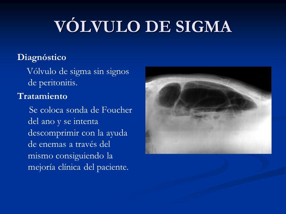 VÓLVULO DE SIGMA Diagnóstico