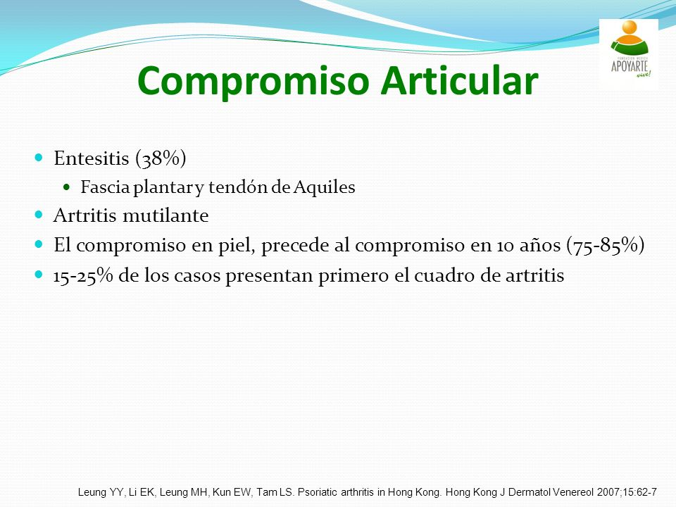 Compromiso Articular Entesitis (38%) Artritis mutilante