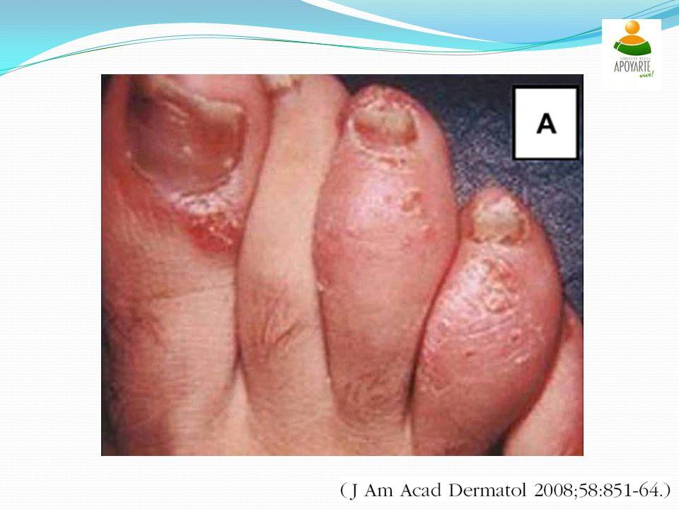 Primer on rheumatic disease