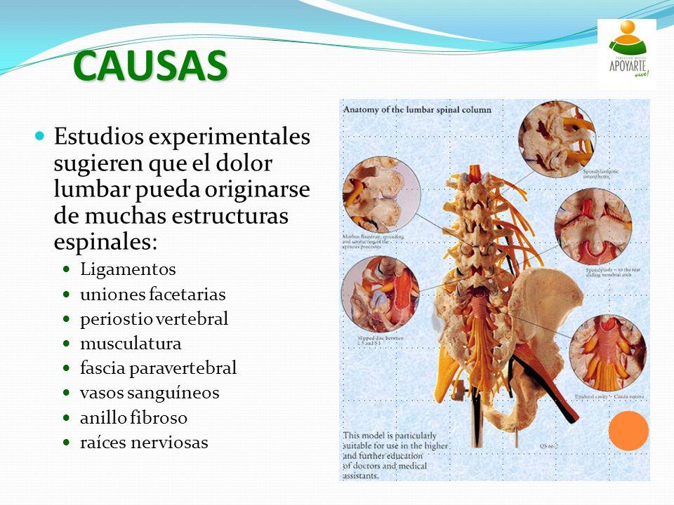 CAUSAS Estudios experimentales sugieren que el dolor lumbar pueda originarse de muchas estructuras espinales: