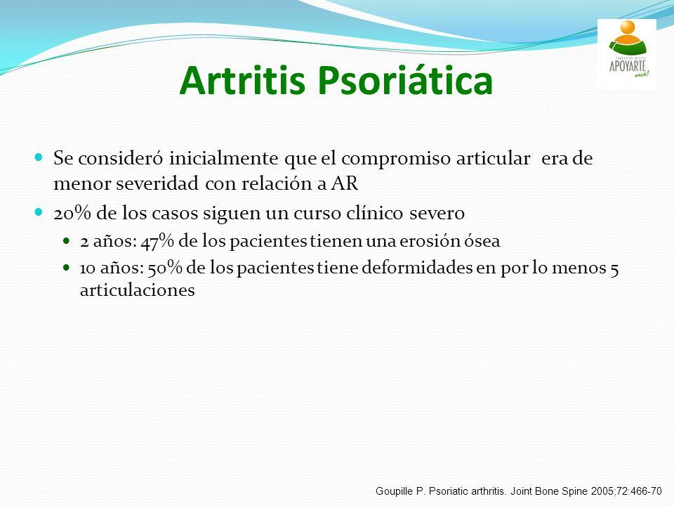 Artritis Psoriática Se consideró inicialmente que el compromiso articular era de menor severidad con relación a AR.