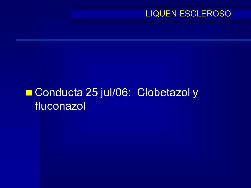 Conducta 25 jul/06: Clobetazol y fluconazol