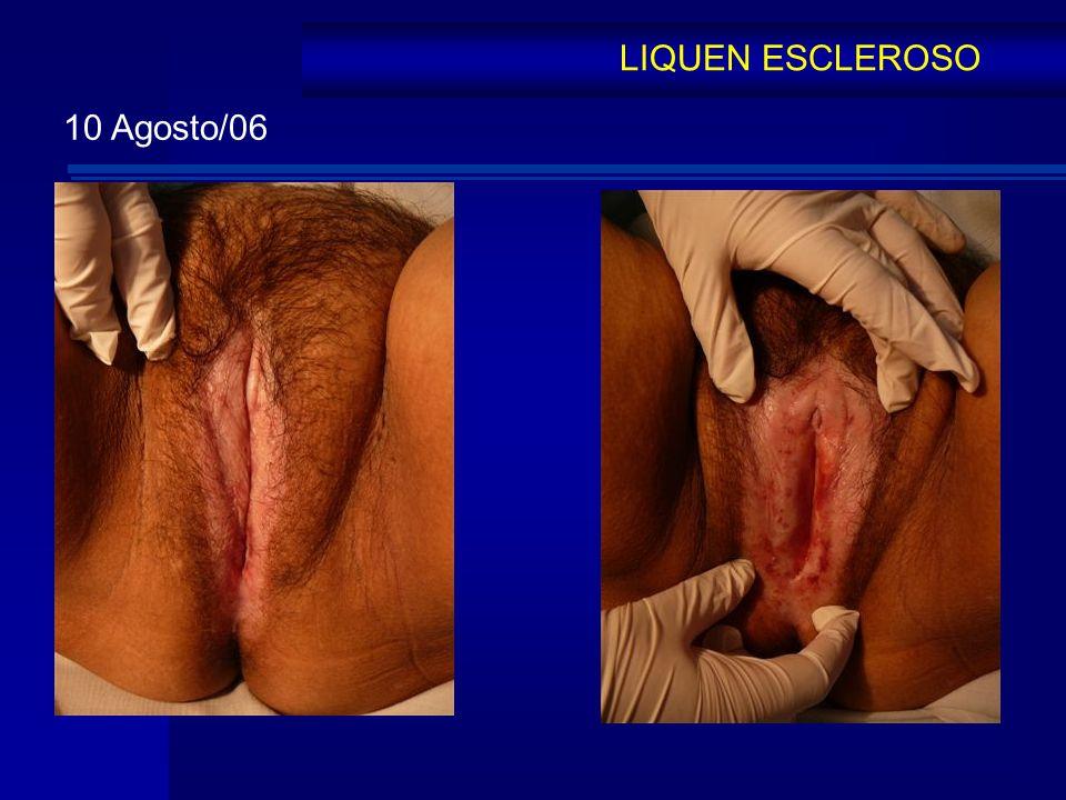 LIQUEN ESCLEROSO 10 Agosto/06