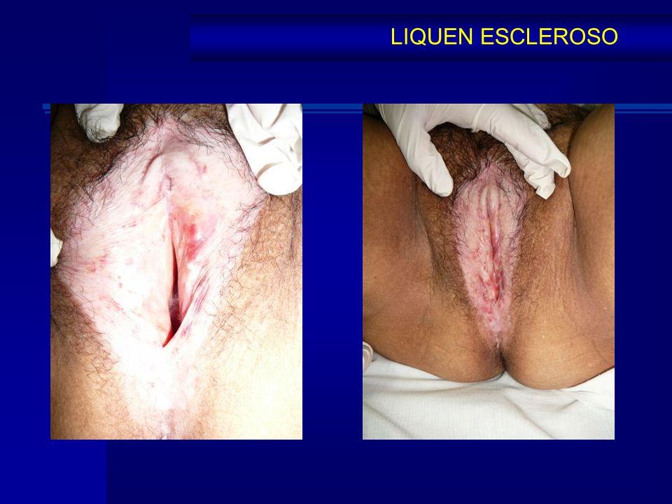 LIQUEN ESCLEROSO