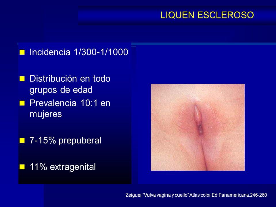 Distribución en todo grupos de edad Prevalencia 10:1 en mujeres