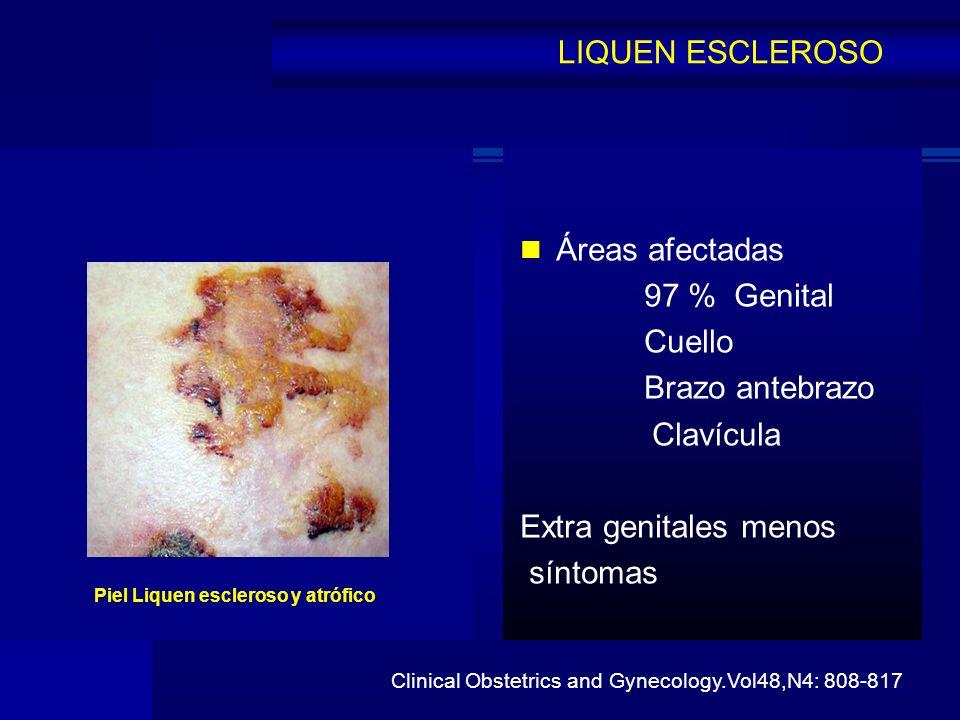 LIQUEN ESCLEROSO Áreas afectadas 97 % Genital Cuello Brazo antebrazo