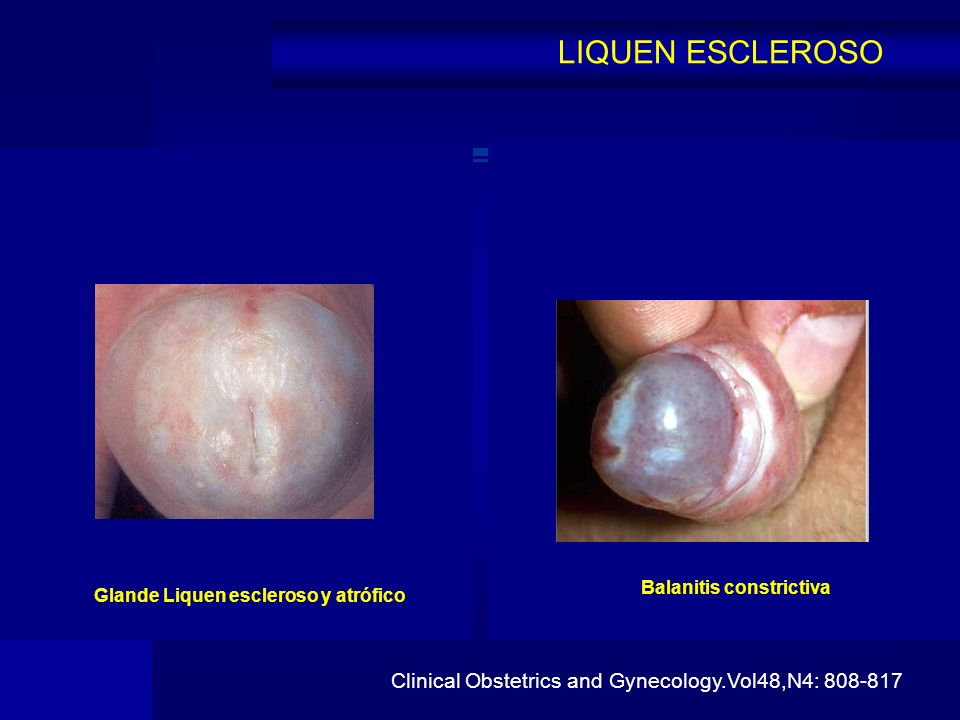 LIQUEN ESCLEROSO Clinical Obstetrics and Gynecology.Vol48,N4: 808-817