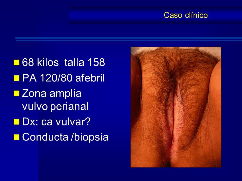 Zona amplia vulvo perianal Dx: ca vulvar Conducta /biopsia
