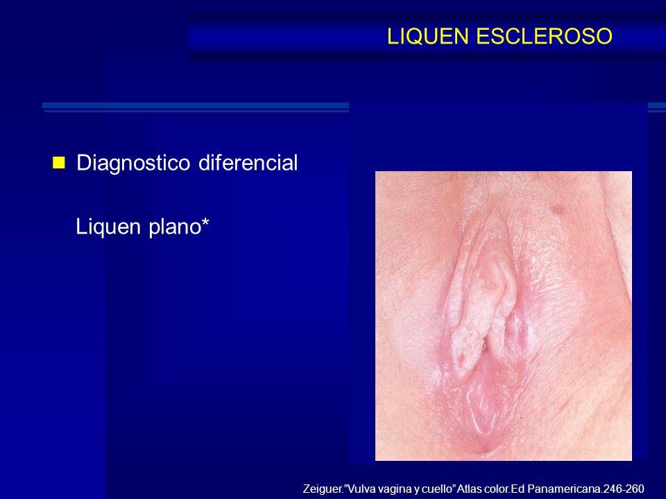 Diagnostico diferencial Liquen plano*