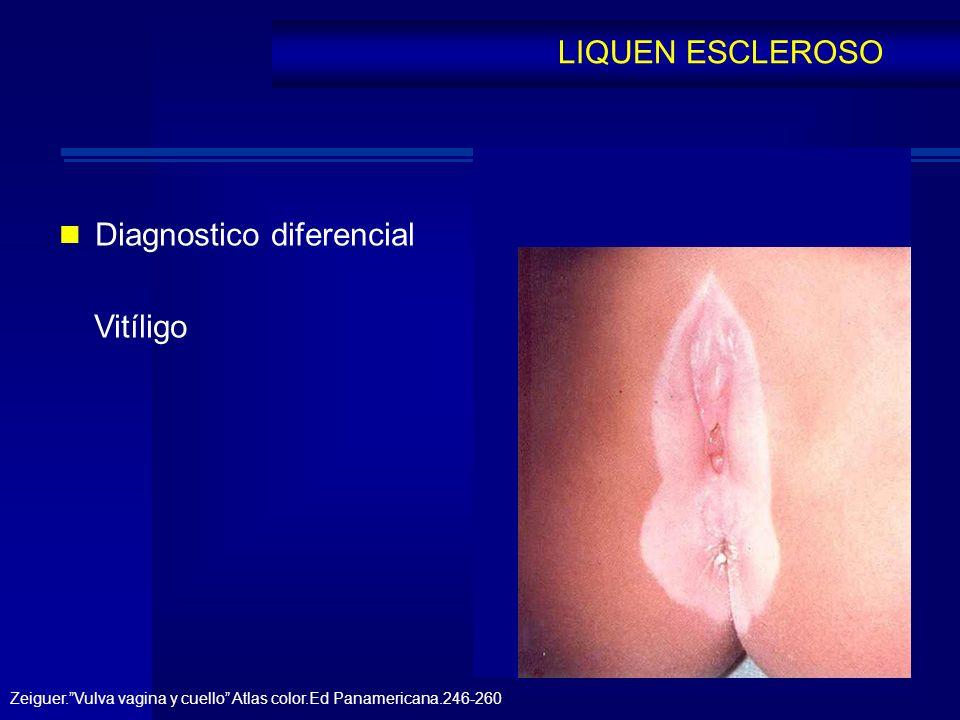 Diagnostico diferencial Vitíligo