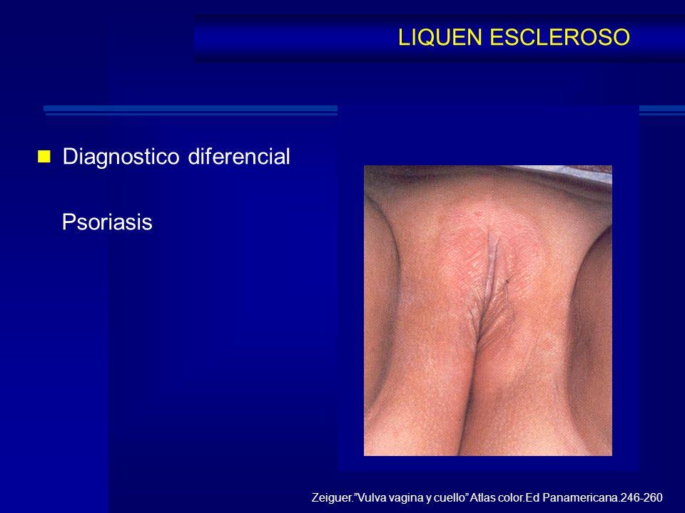 Diagnostico diferencial Psoriasis